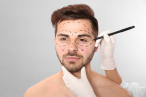 Men Considering a Plastic Surgery