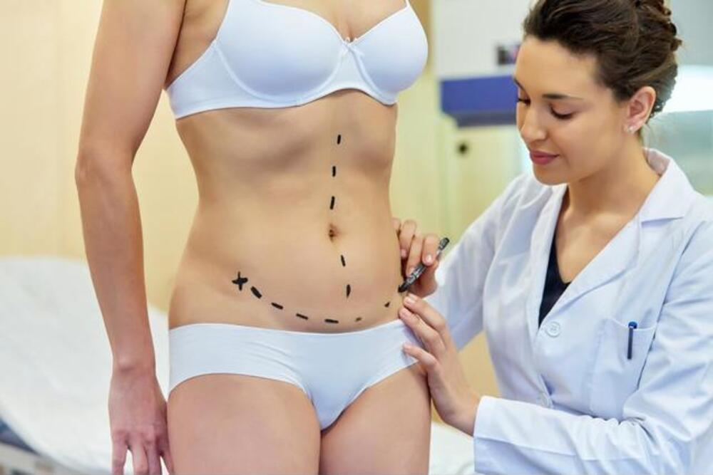 How to Prepare for your Tummy Tuck